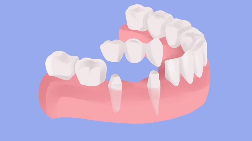 имплантация или зубной мост